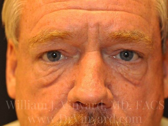 Front View-Lower Eyelids Before