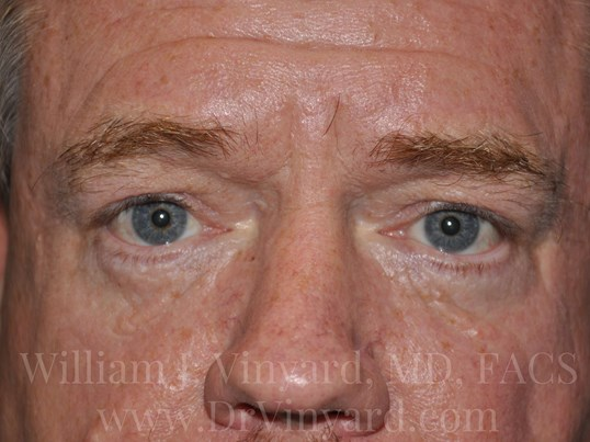 Front View-Lower Eyelids After