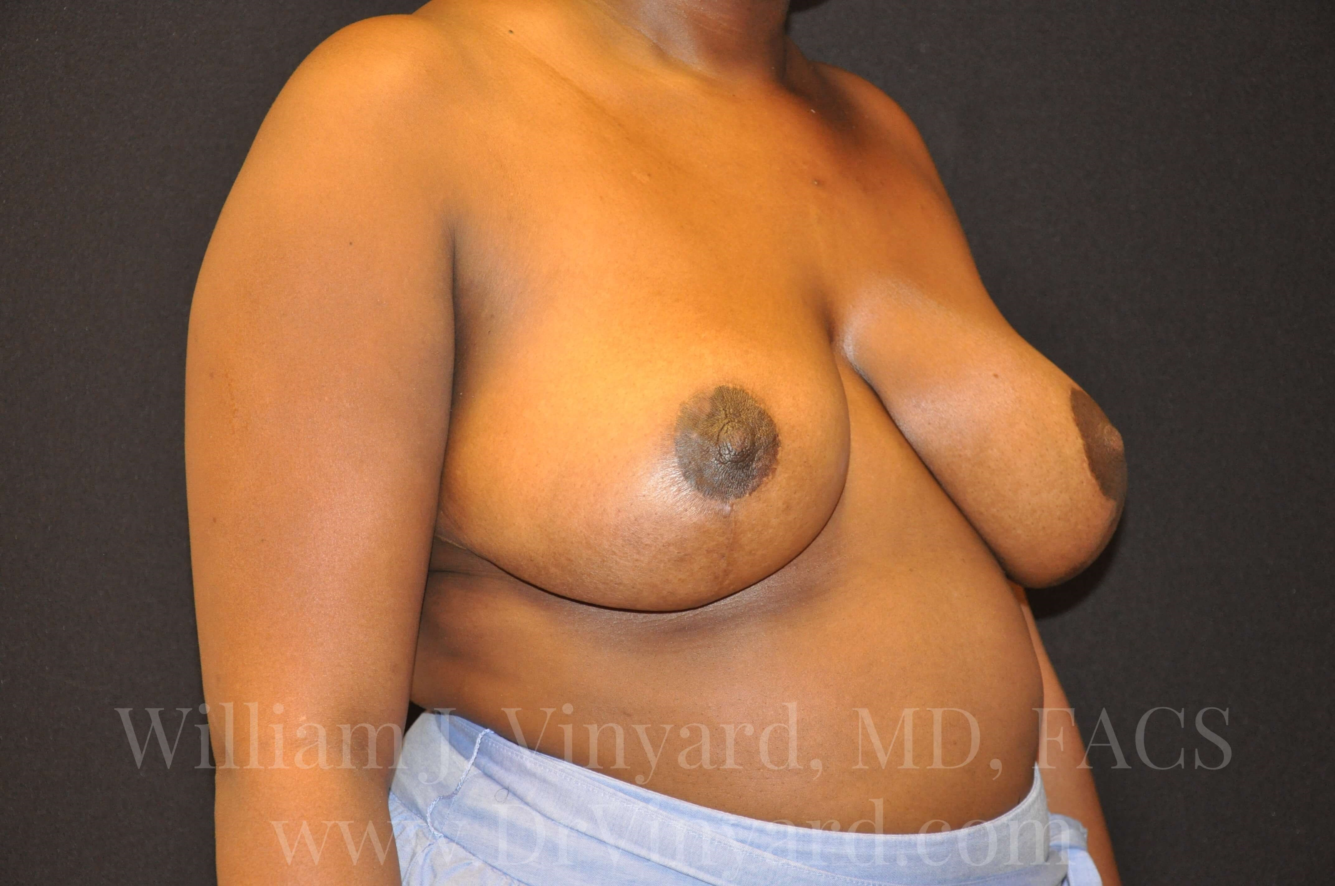 Right Oblique View-Breasts After