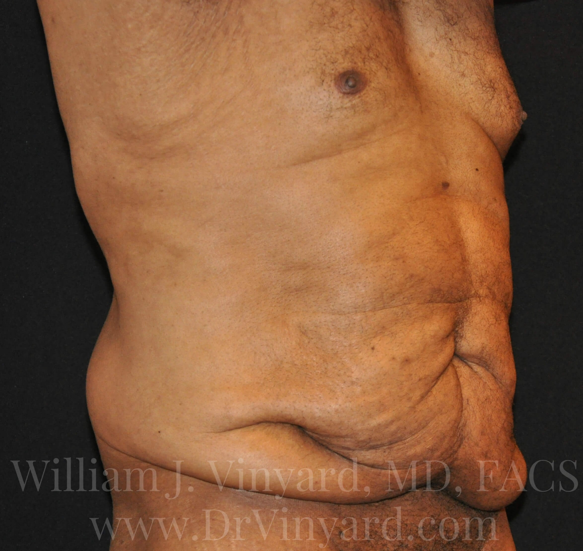 Right Oblique View - Abdomen Before