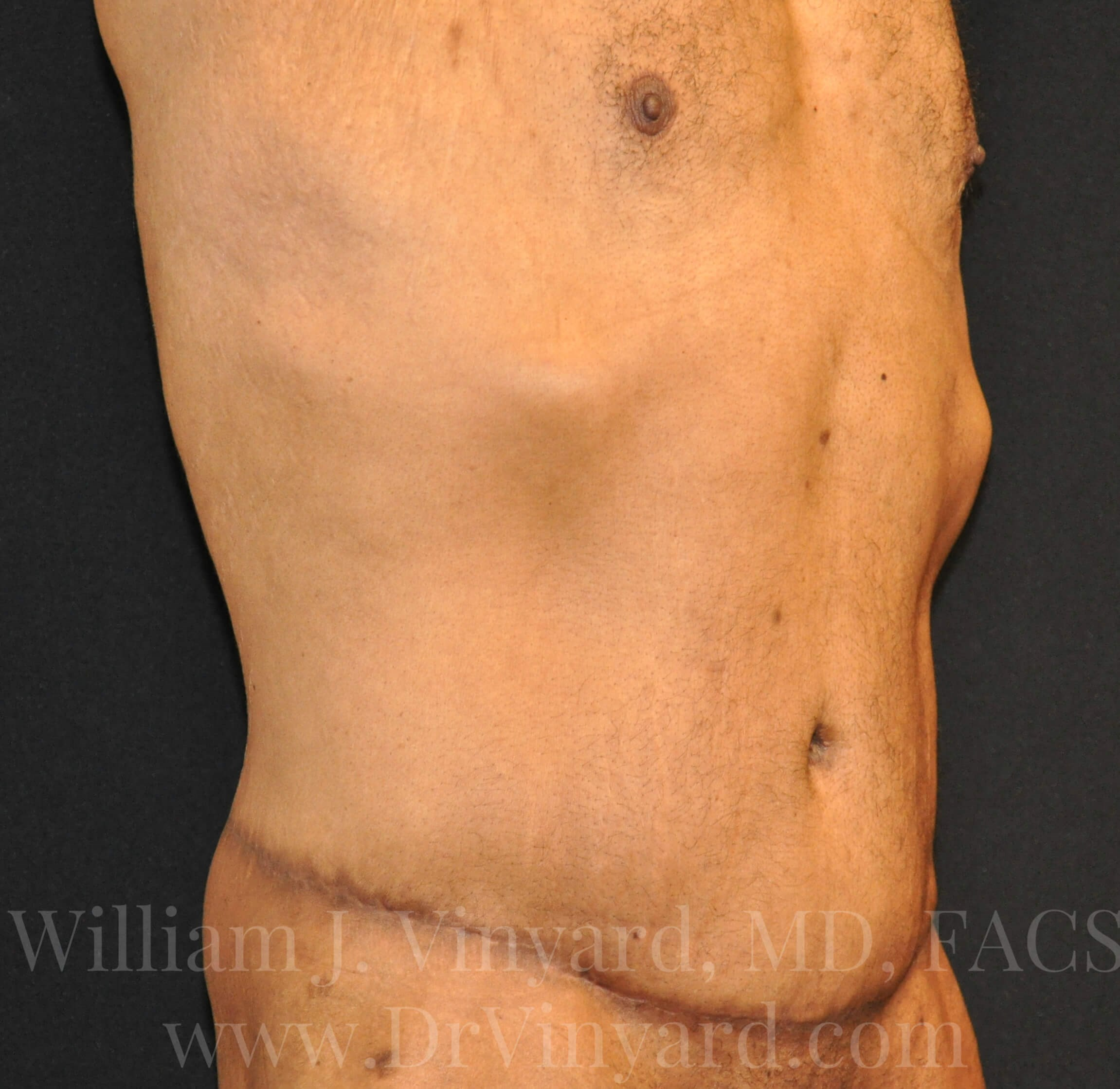 Right Oblique View - Abdomen After