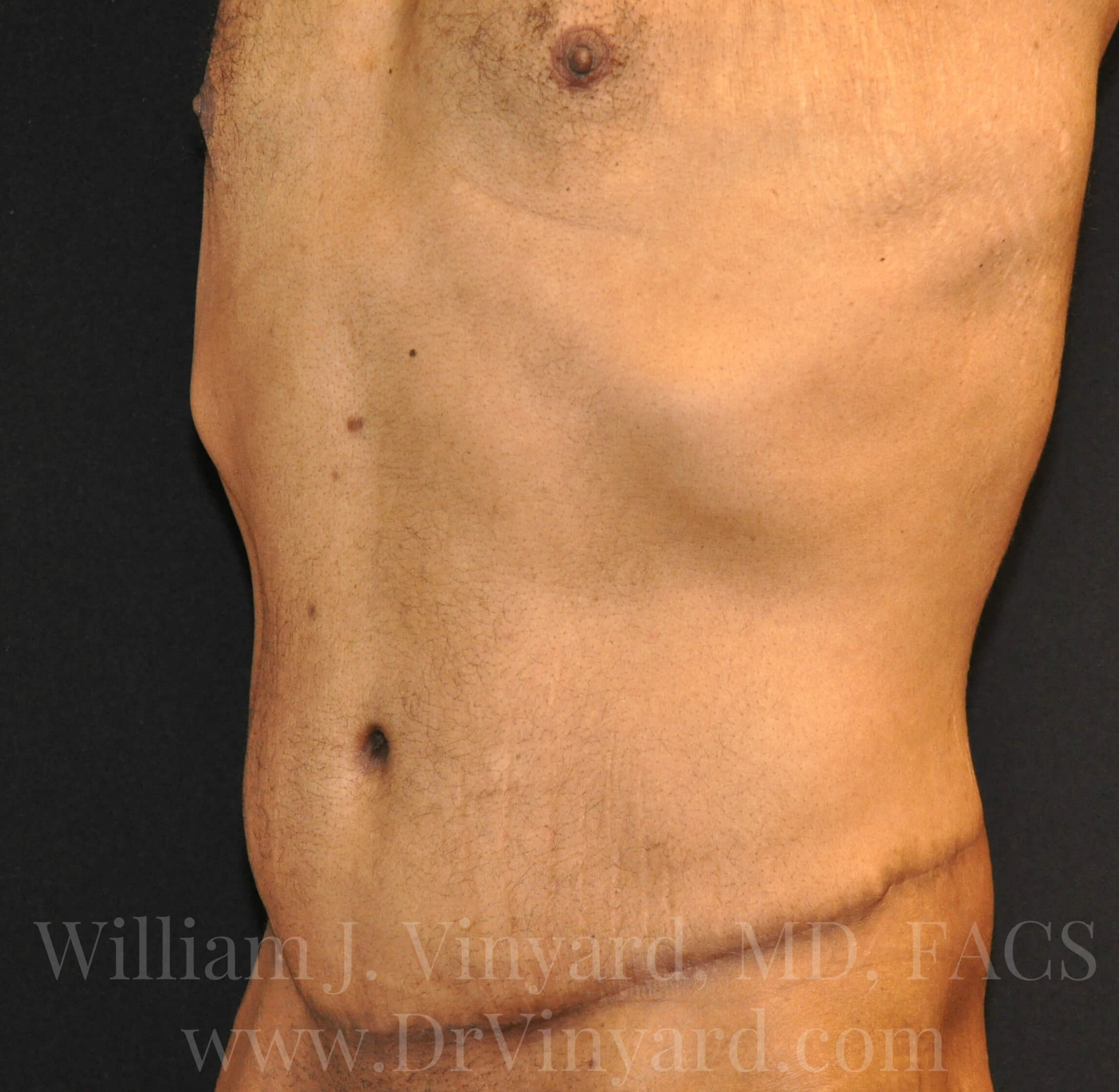 Left Oblique View - Abdomen After
