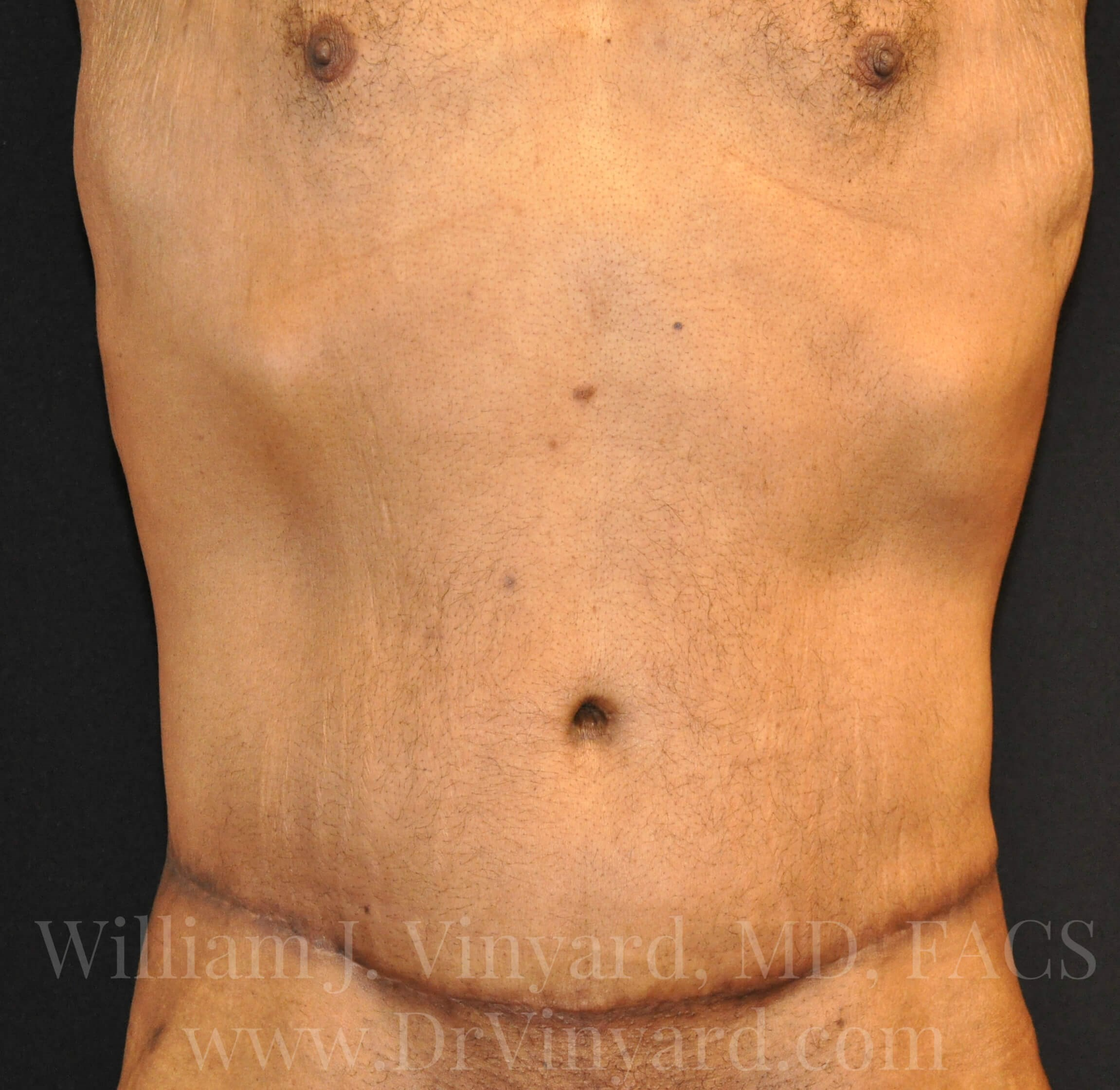 Front View - Abdomen After