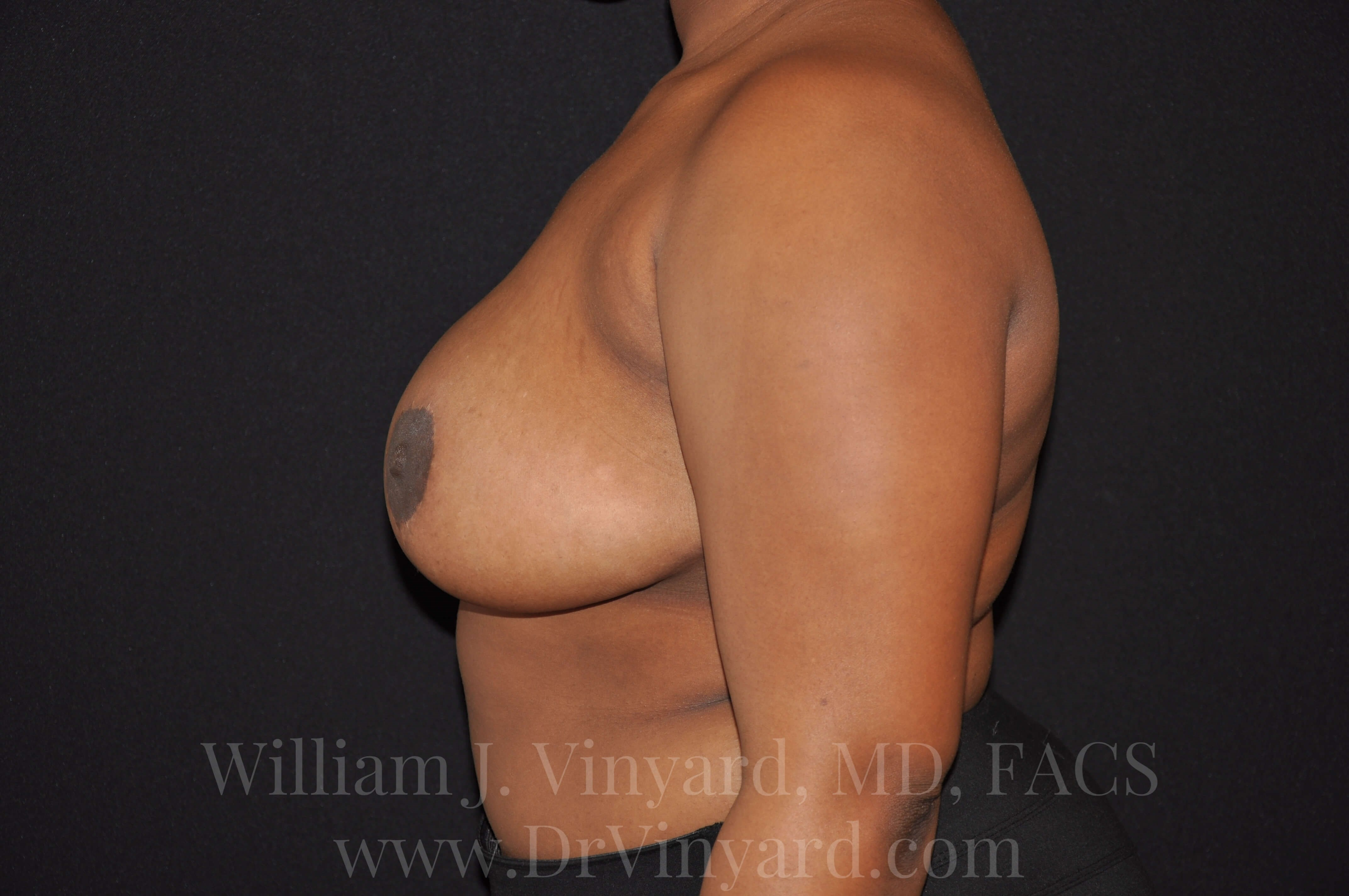 Left Side View - Breasts After