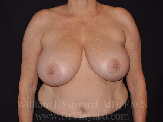 Front View - Breasts Before