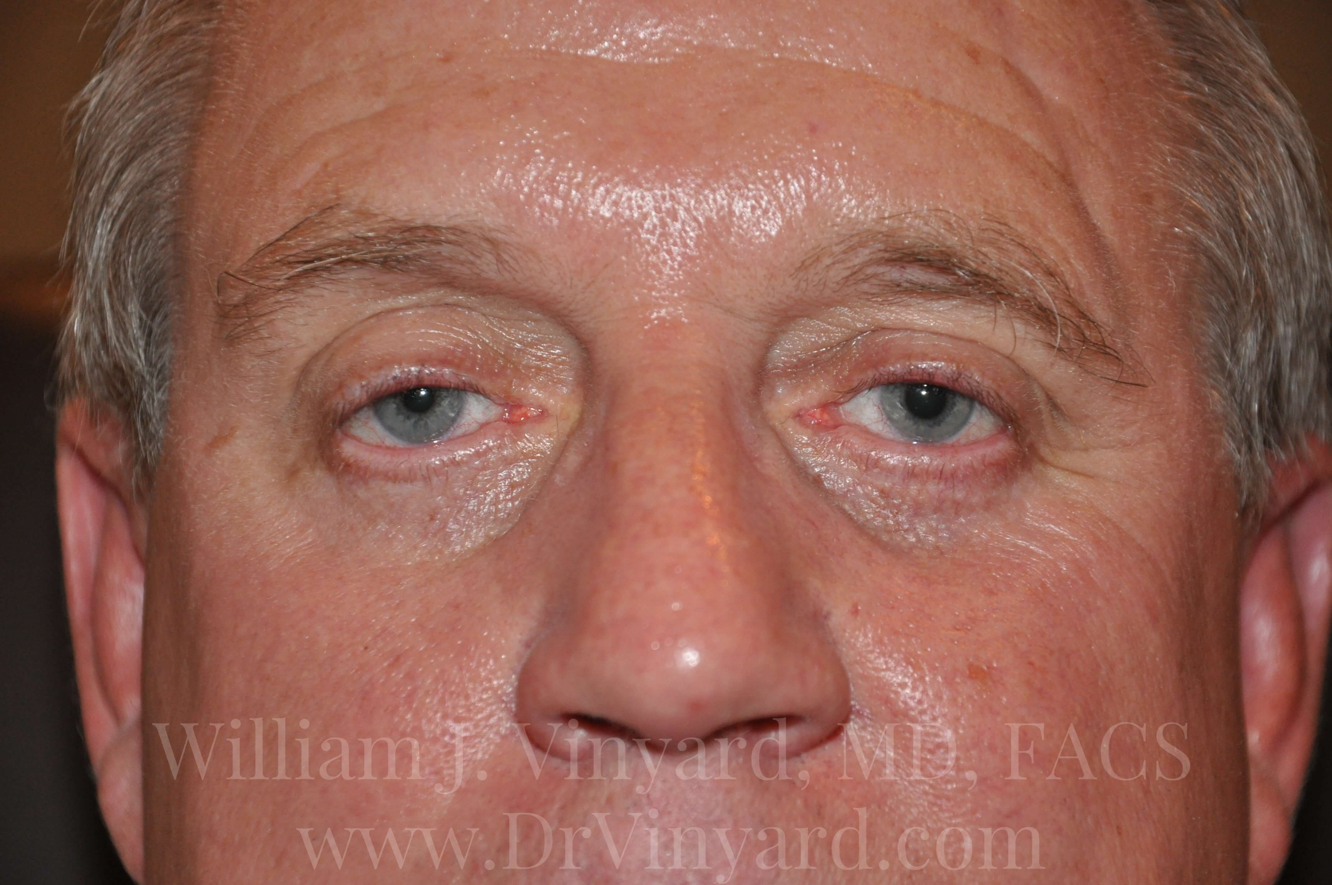 Front View - Eyelids After