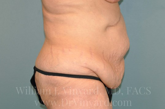 Right Side View - Abdomen Before