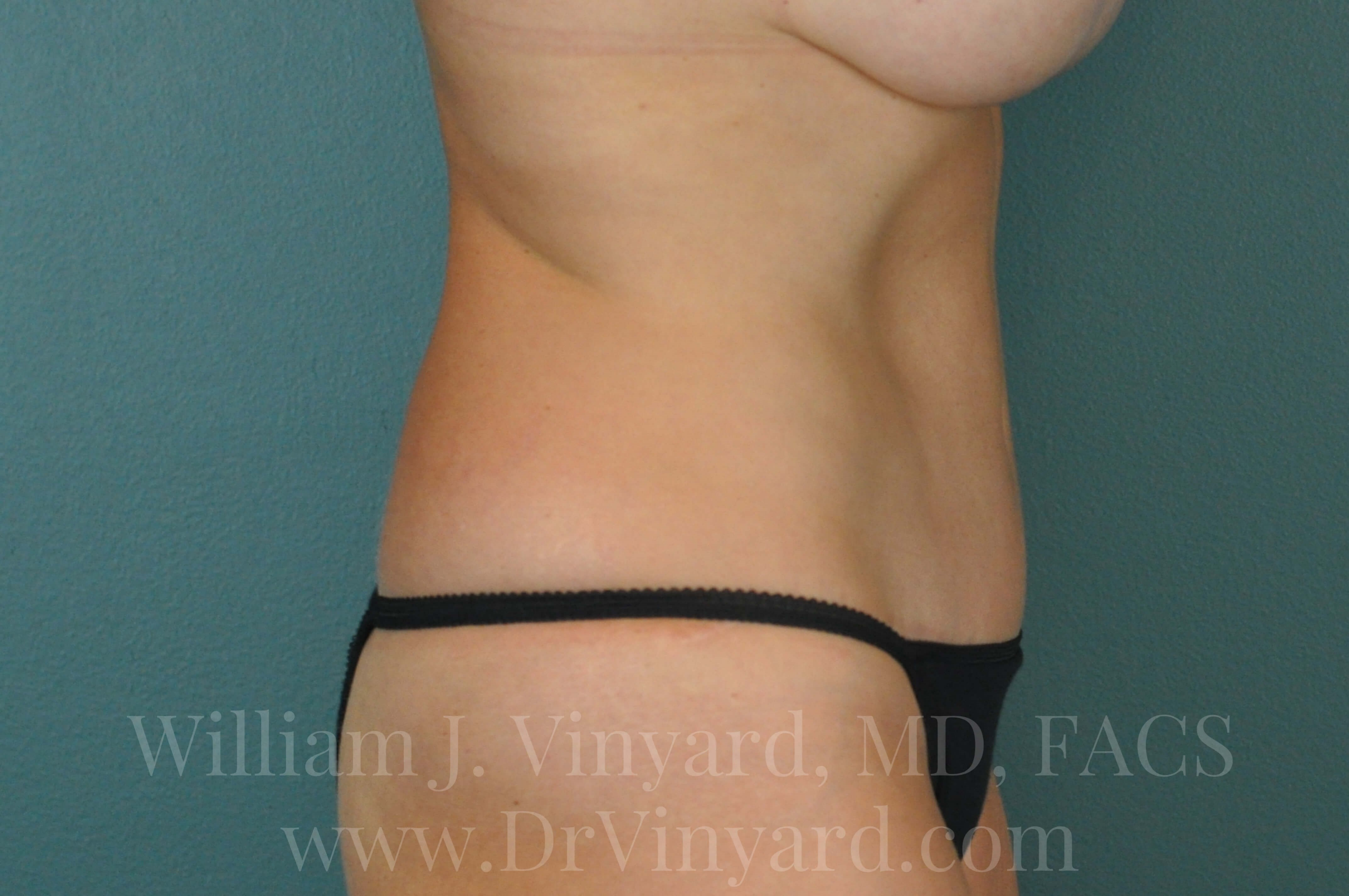 Right Side View - Abdomen After