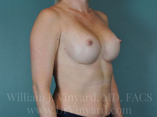 Right Oblique View - Breasts After