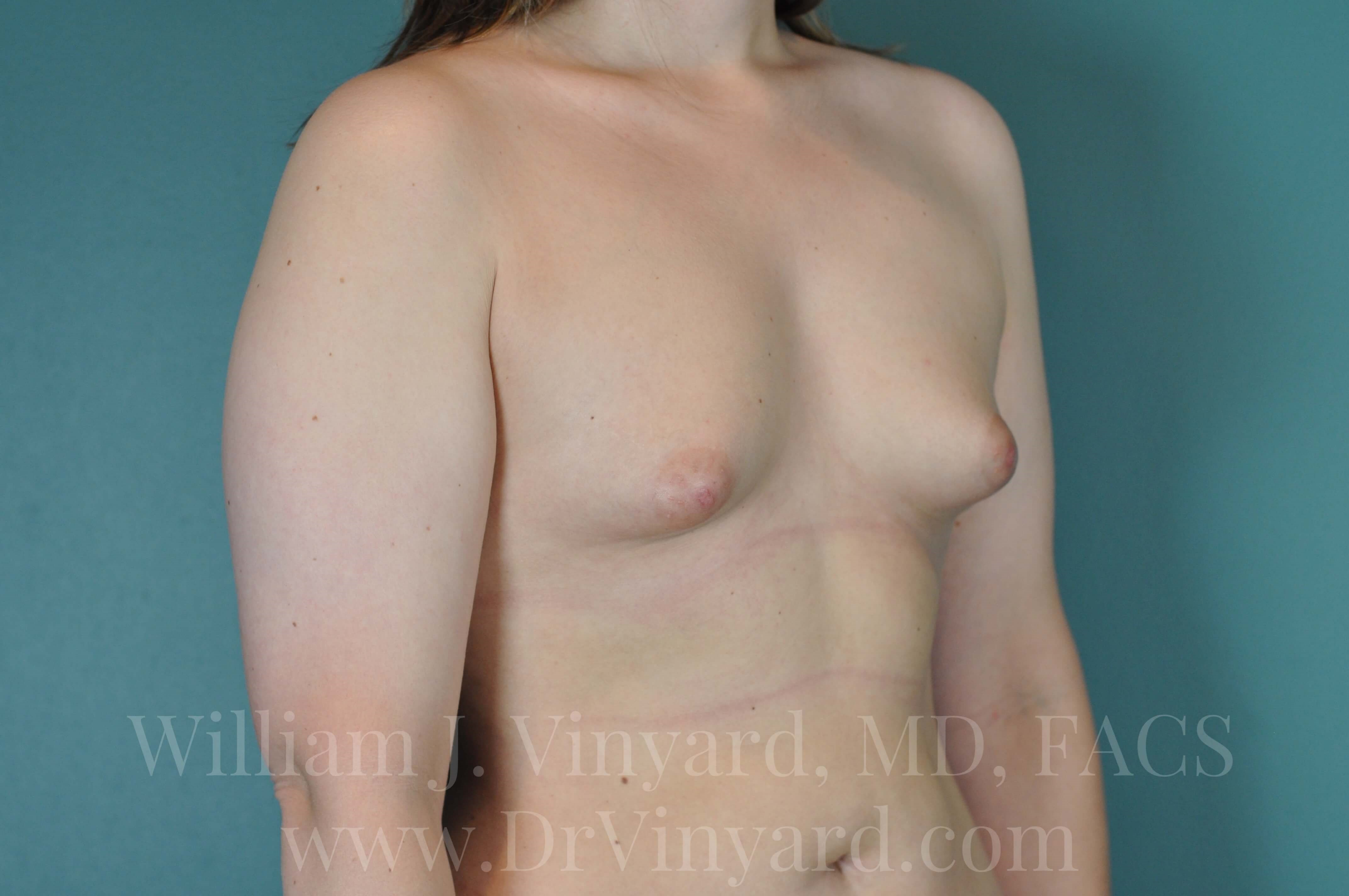 Right Oblique View - Breasts Before