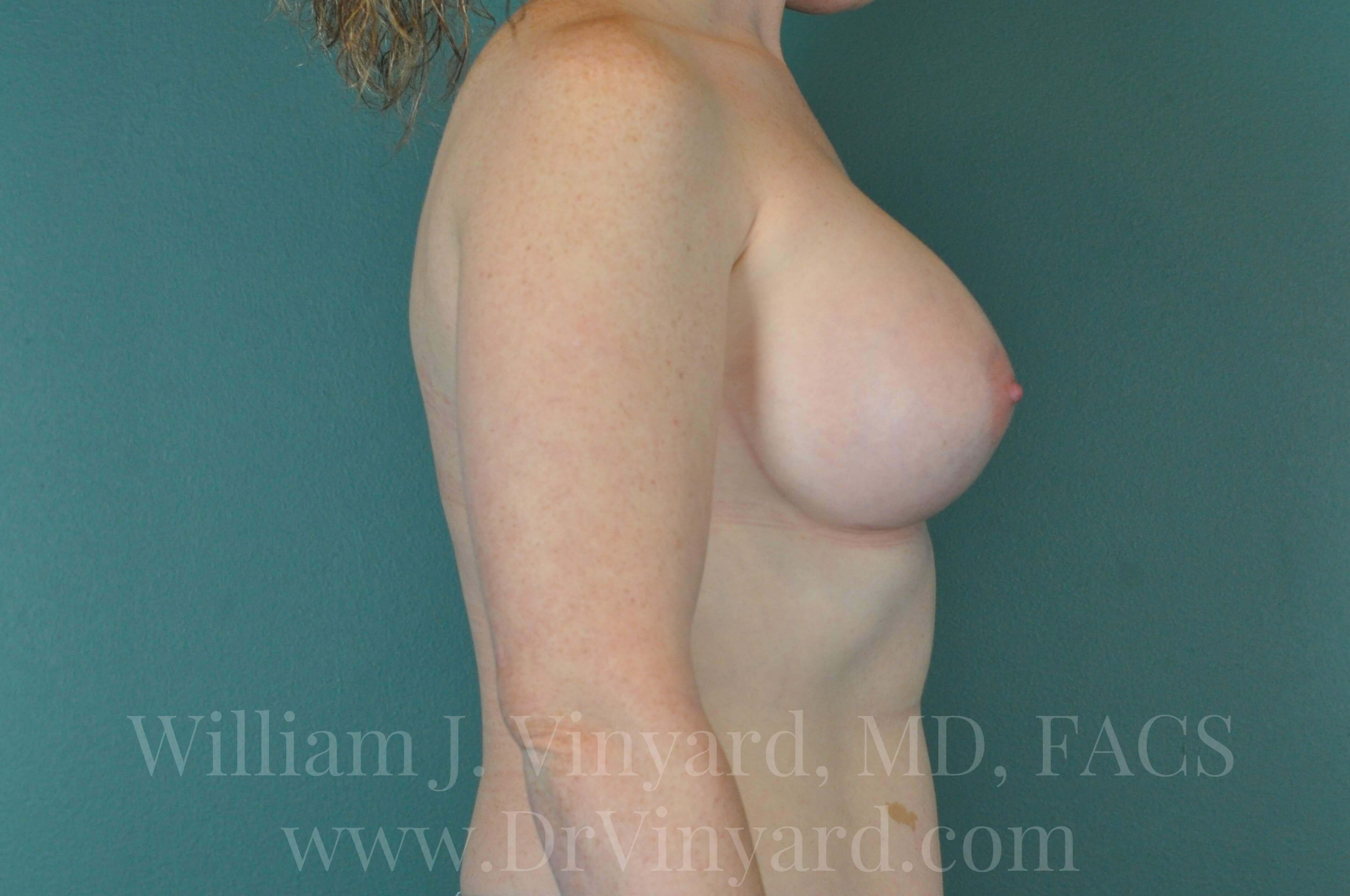 Right Side View - Breasts After