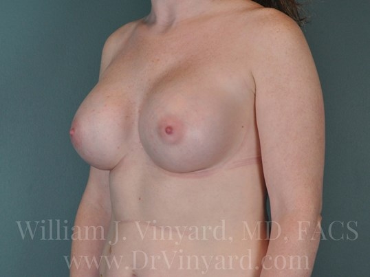 Left Oblique View - Breasts After