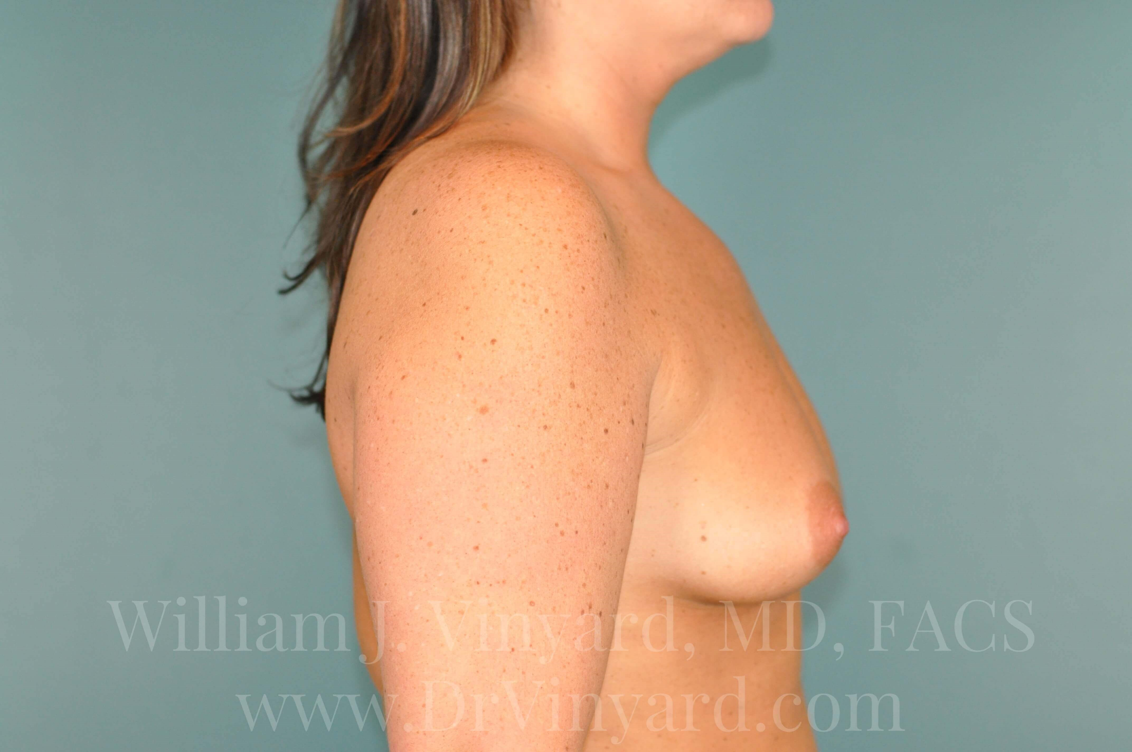 Right Side View - Breasts Before