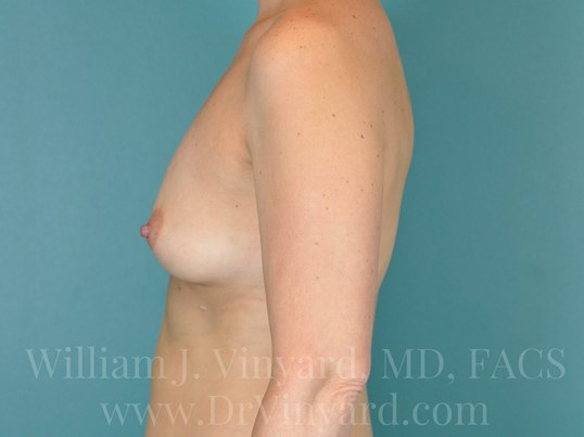 Left Side View - Breasts Before