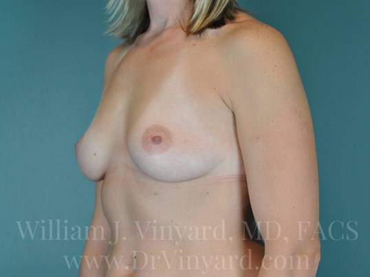 Left Oblique View- Breasts Before