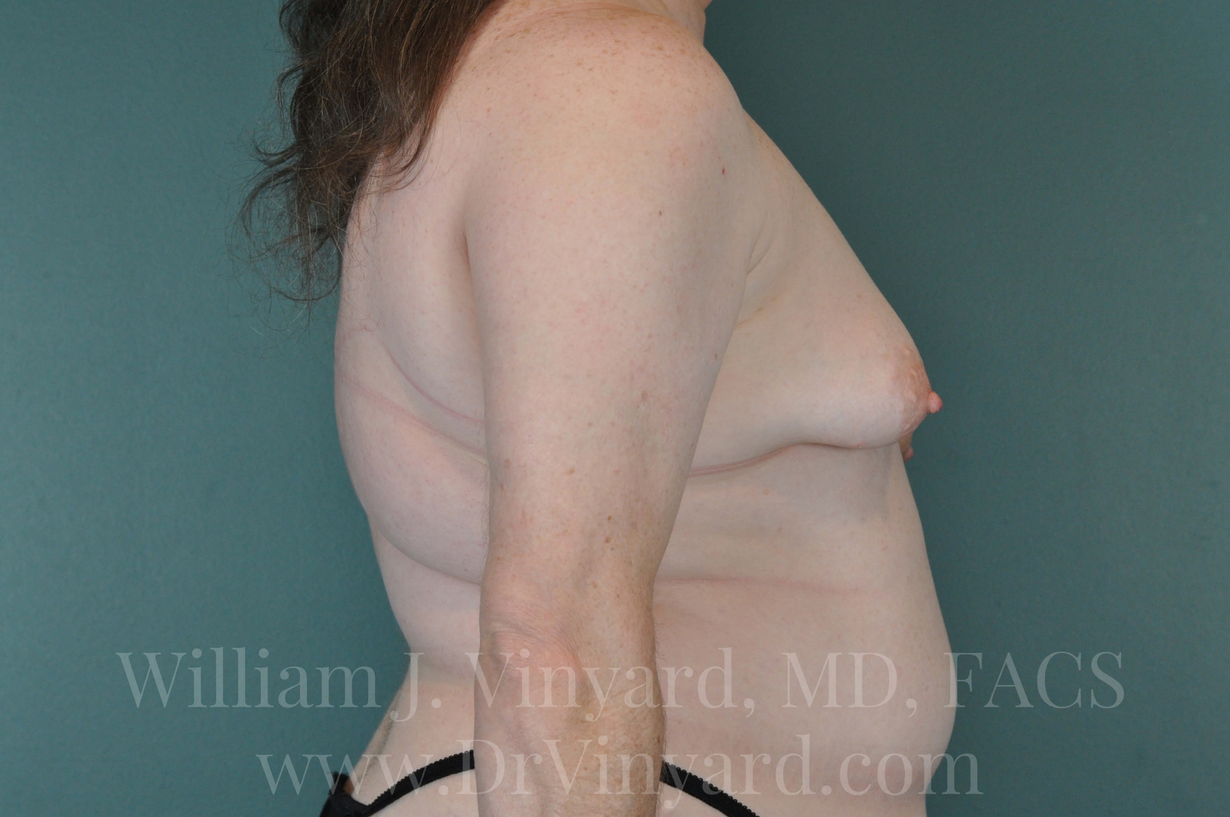Right Side View- Breasts Before
