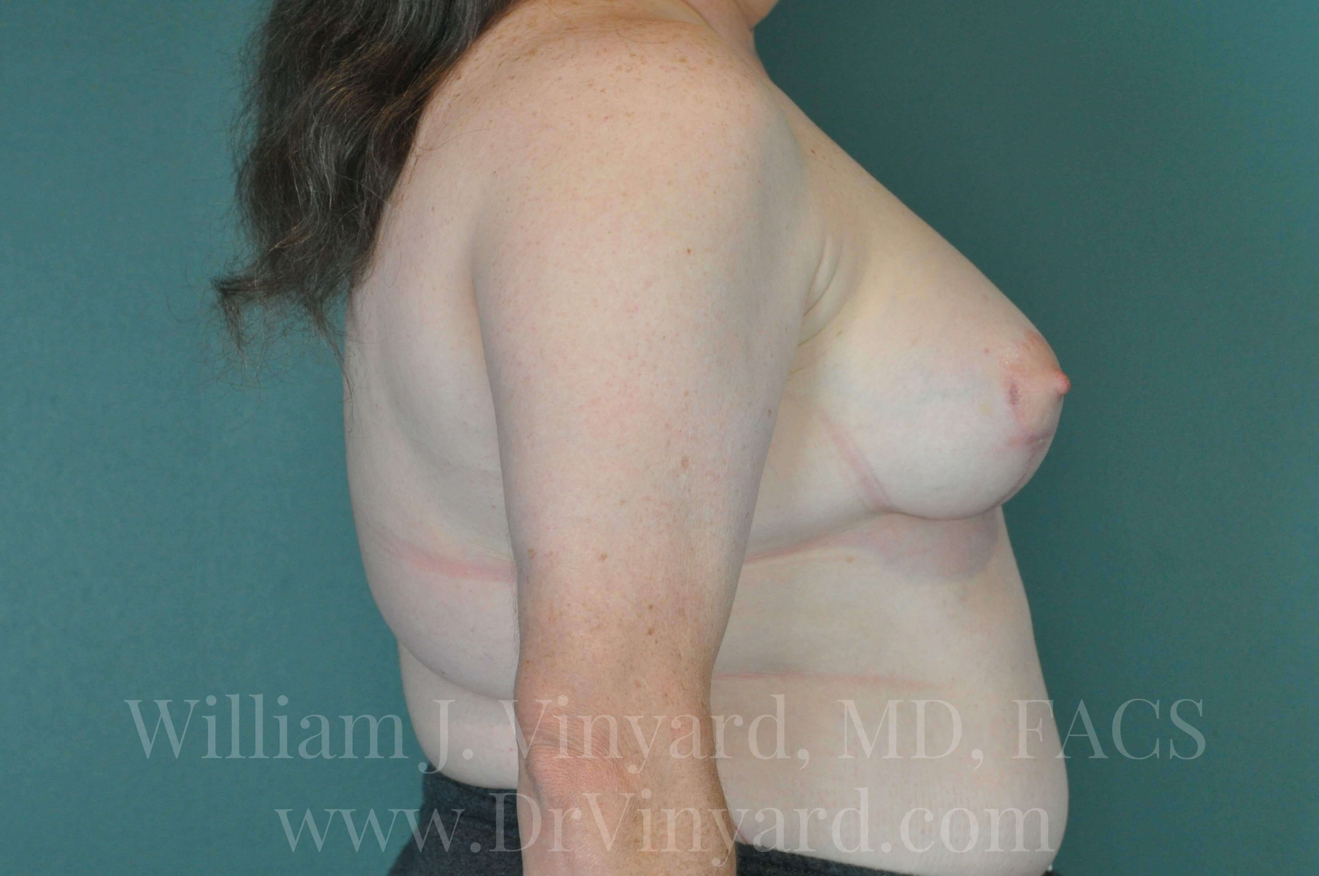 Right Side View- Breasts After