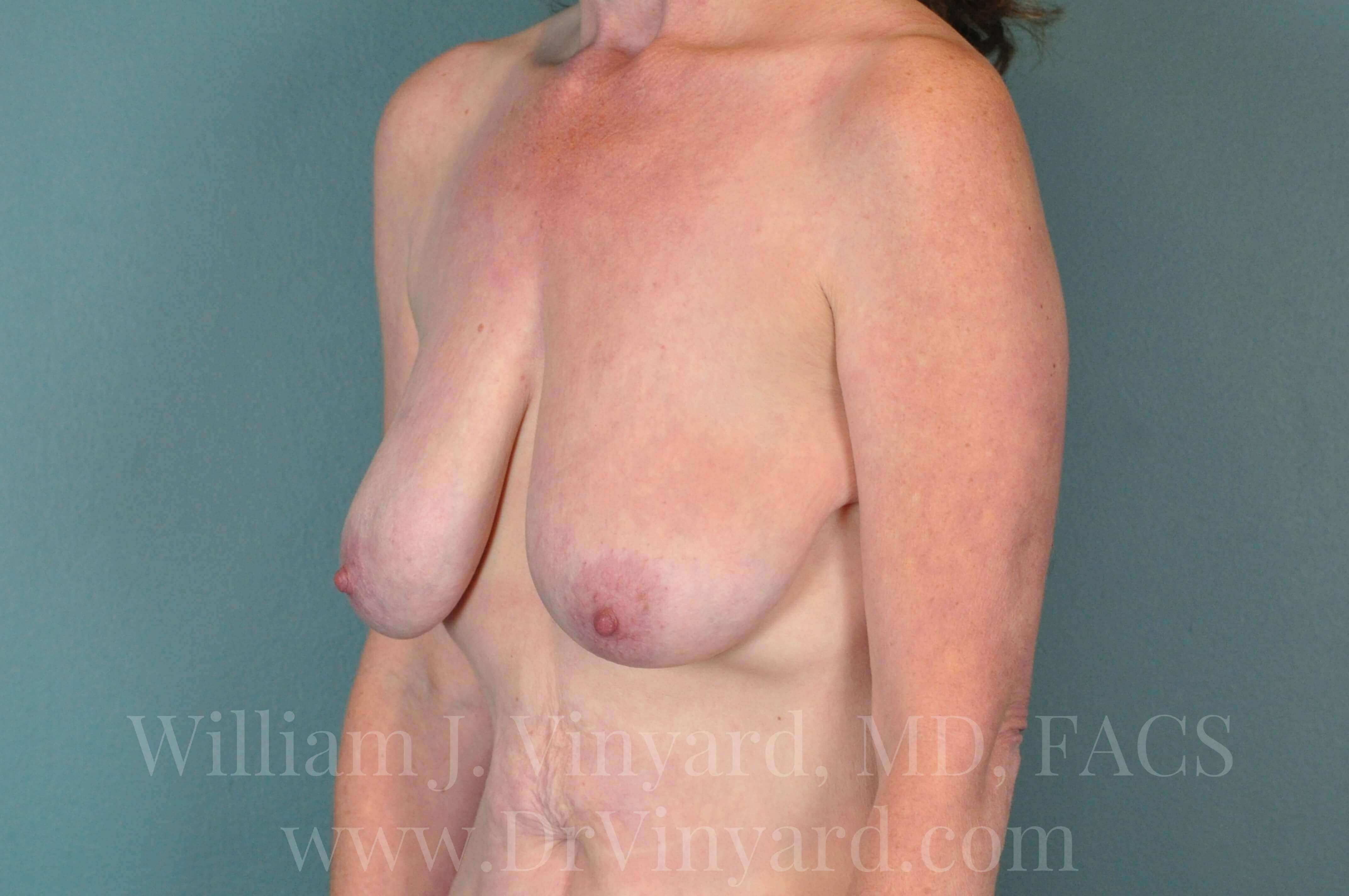 Left Oblique View - Breasts Before