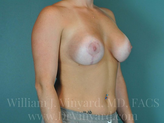 Right Oblique View  Breasts After