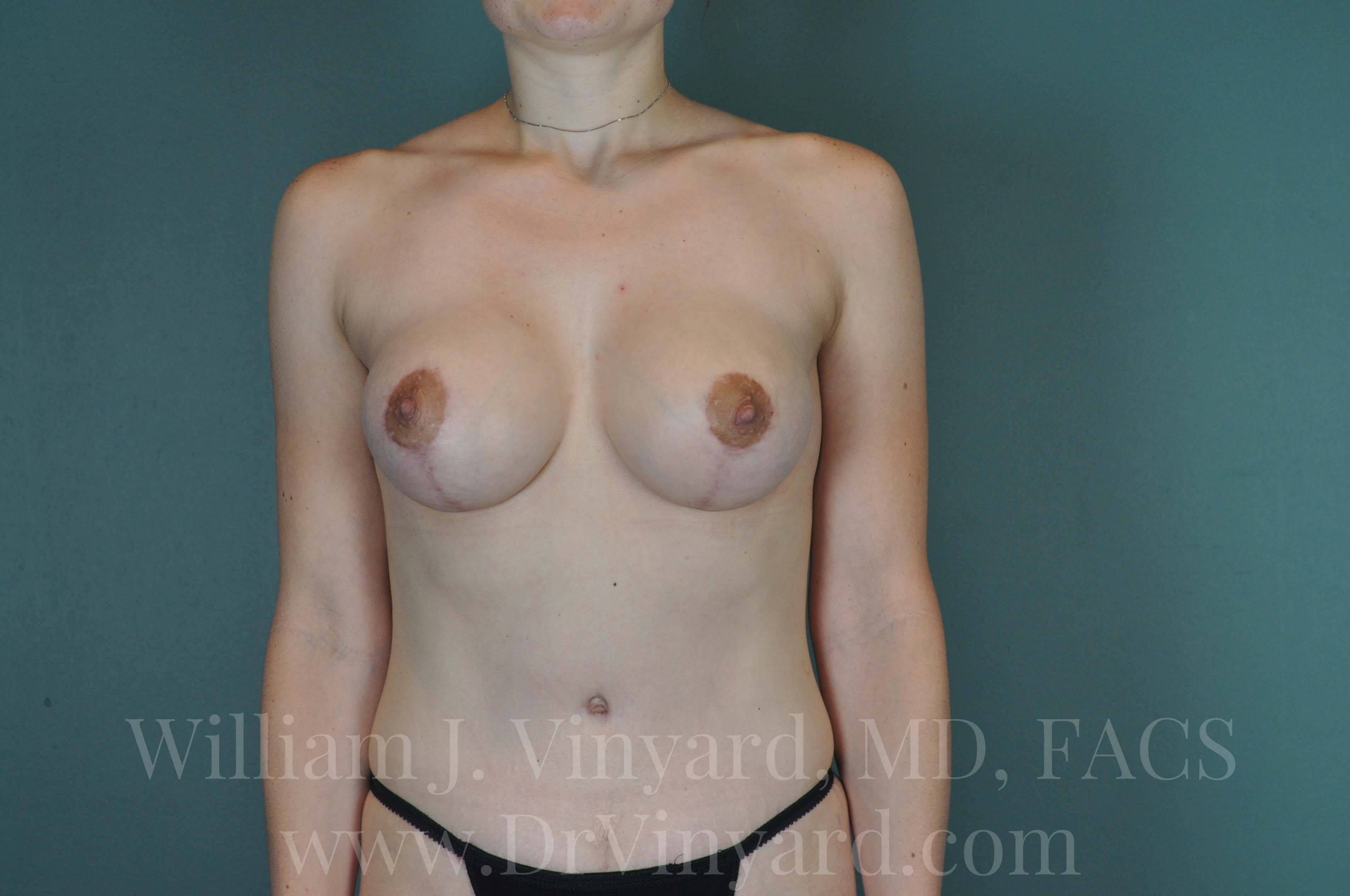 Front View - Breasts After