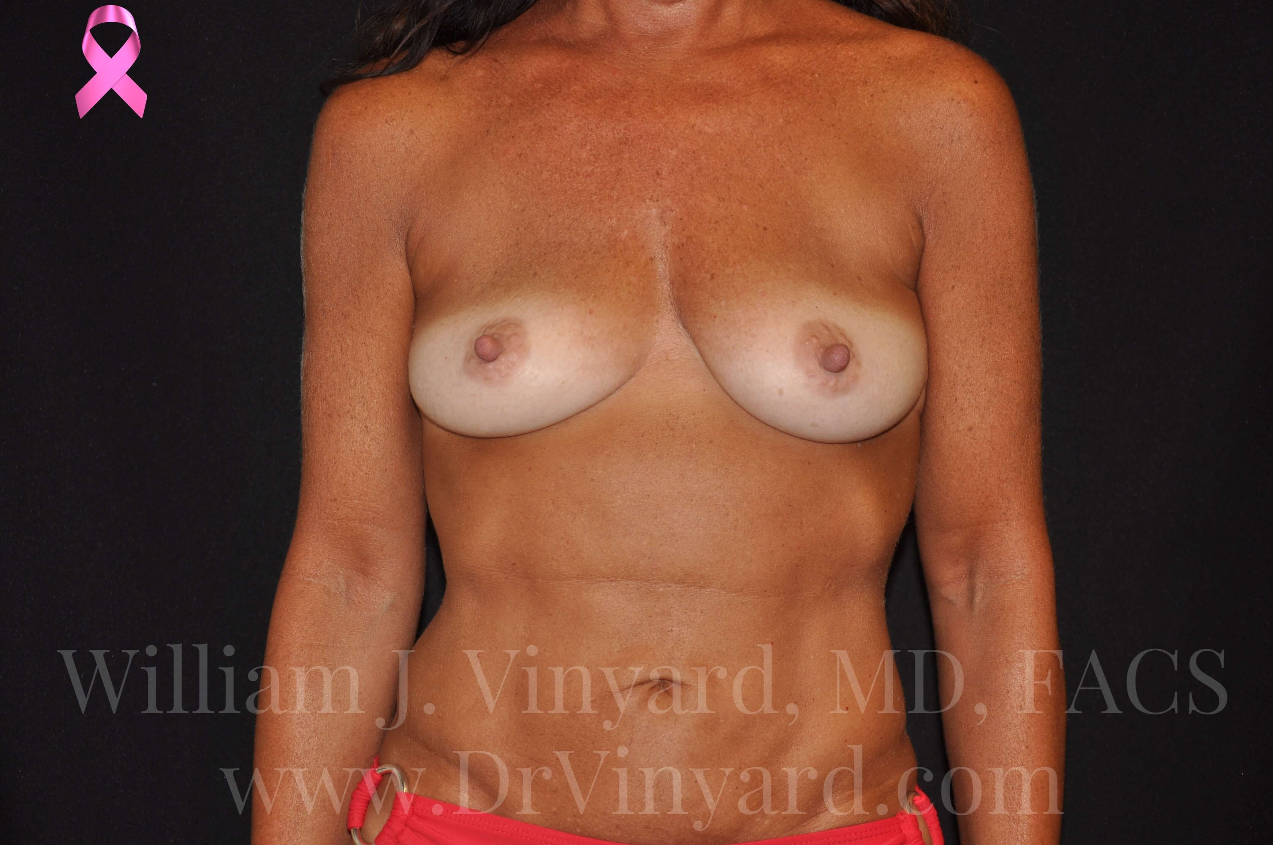 Front View-Breasts Before