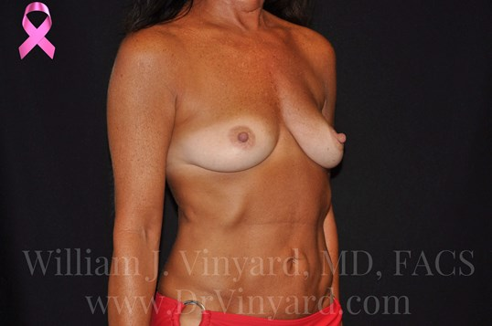 Right Oblique View-Breasts Before